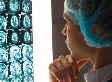 Radiocirurgia Estereotáxica Cerebral