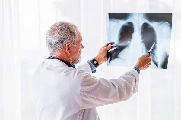Agosto Branco: afaste do tabagismo e previna-se de vários tipos de câncer